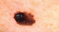 Asymmetry melanoma skin cancer